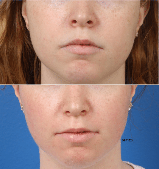 A woman on the top is shown with full cheeks. On the bottom the same woman is shown after buccal fat removal with slimmer cheeks