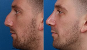 On the left a man is shown with a large nose. On the right, the same man is shown after Natranose® rhinoplasty with a smaller nose.
