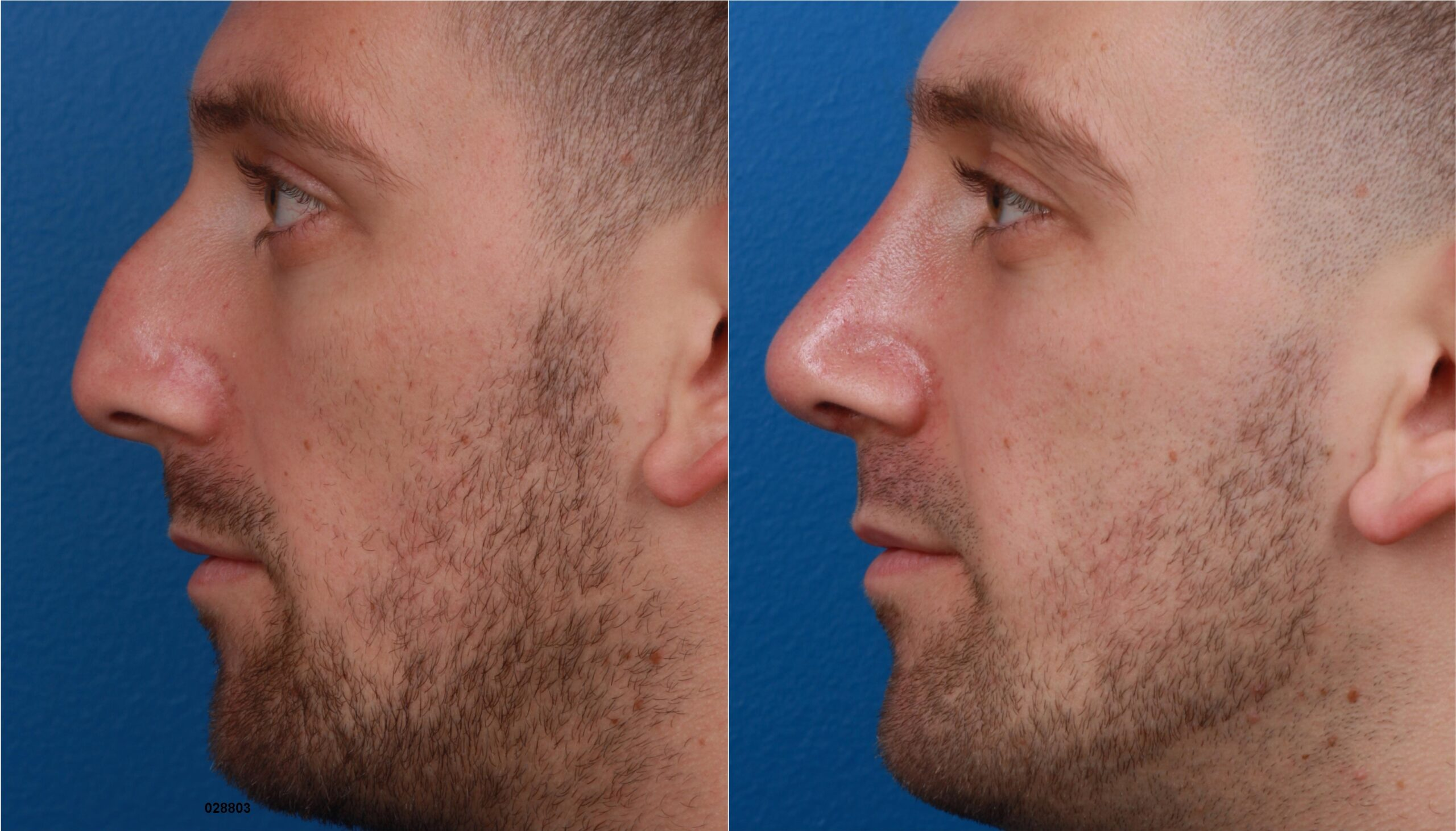 Before and after of a rhinoplasty