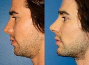Before and after image of a man who has undergone jawline enhancement surgery in New York City