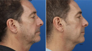 Medical Aesthetics for Men for New York City Rhinoplasty Expert Blog