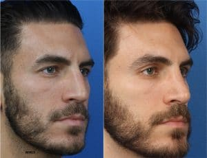 Before and After image of a man undergoing facial wrinkle removal procedures in New York City.