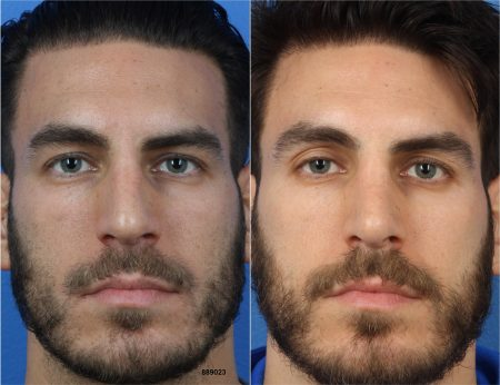 Before and After NatraNose by Dr. Philip Miller