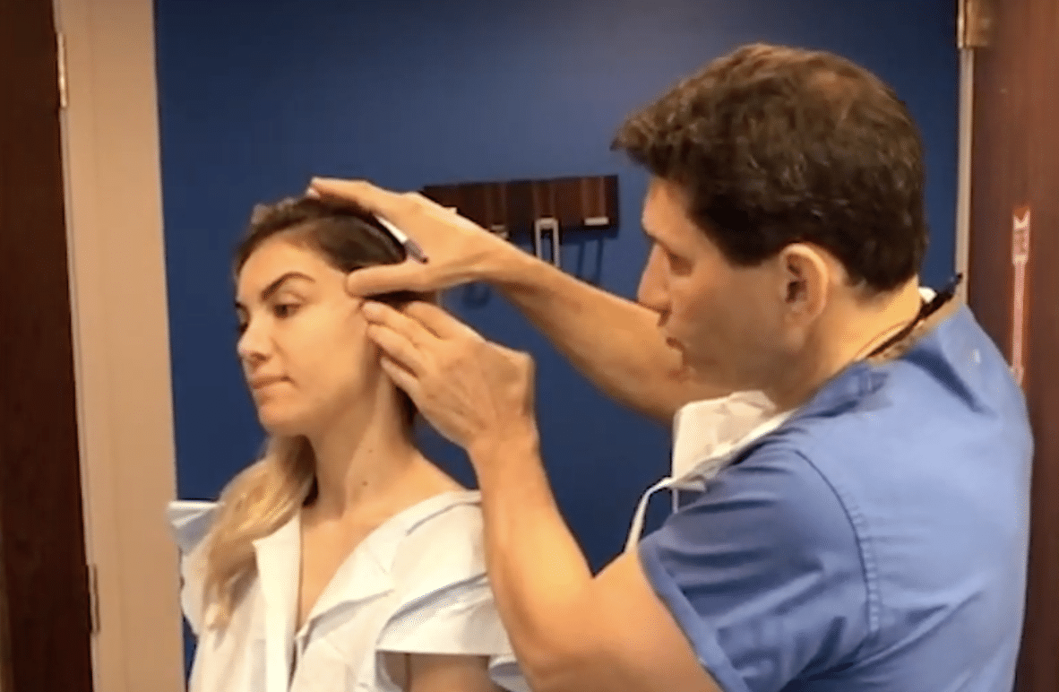 Ponytail Micro Lift Procedure by Dr. Miller