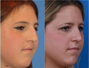On the right, a woman is shown in profile with a bump on her nose. On the left, the same woman is shown after rhinoplasty with the bump removed.