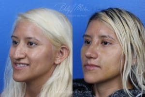 result comparing nose of a young female before and after her rhinoplasty in NYC, NY. After rhinoplasty, the crooked nose is straightened improving the overall appearance.
