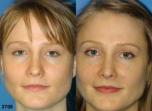 Image showing a young woman who had revision rhinoplasty, her nose is more straight and contoured showing great results after rhinoplasty, NYC, NY
