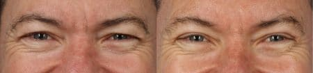 Upper Blepharoplasty with Dr. Miller