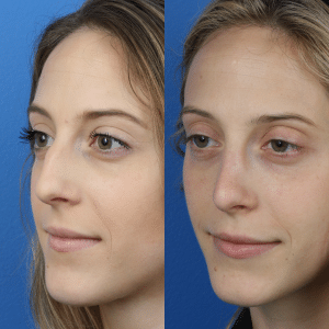 Images showing a young white female before and after a rhinoplasty, New York, NY
