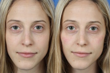Rhinoplasty and Fillers with Dr. Miller