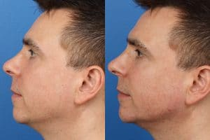 A side to side comparison of a white male after Profileplasty, a procedure combining a chin implant and nose job, New York, NY