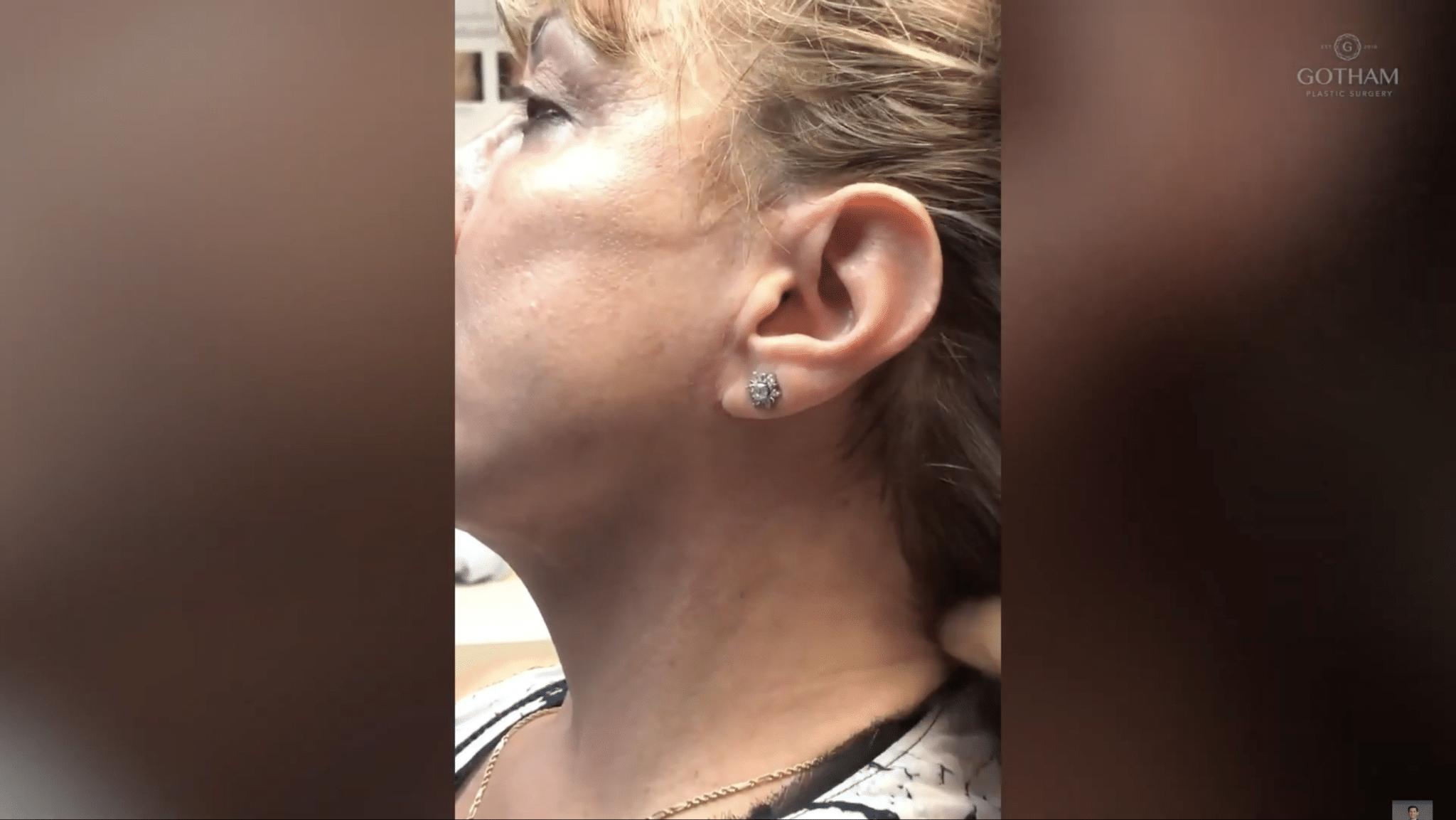 Facelift Surgery Post Op