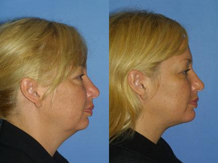 Chin liposuction and neck lift before and after of a patient at our New York office.