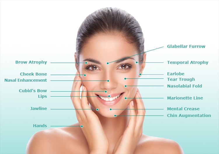 Image showing face of a female, listing the anatomy of the face useful when using dermal fillers for wrinkles treatment.