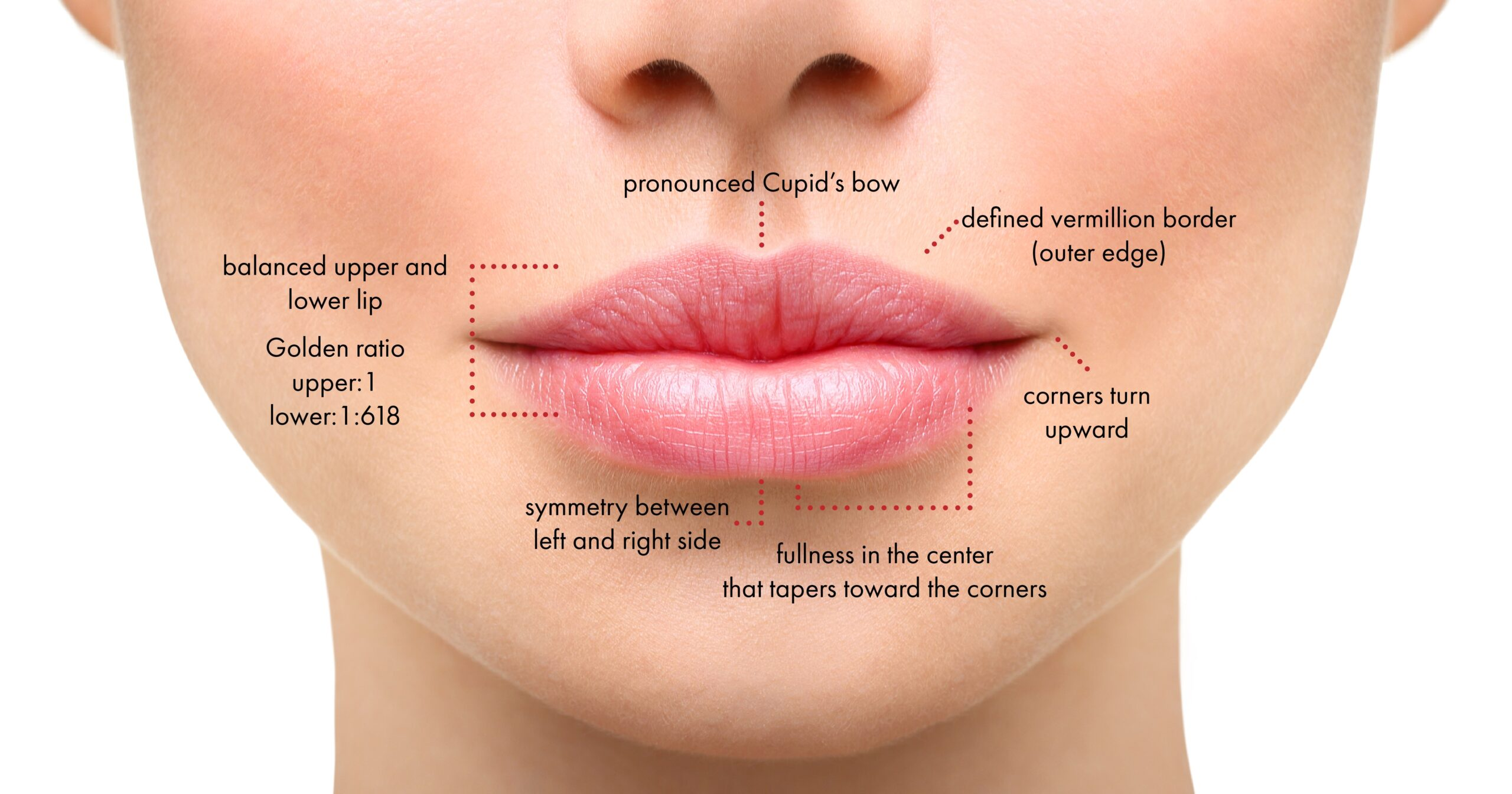 Facial diagram explaining the details of where to inject dermal fillers