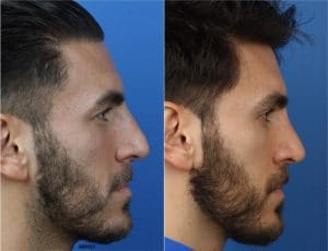 male rhinoplasty patient in new york