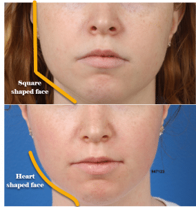 before and after of buccal fat removal