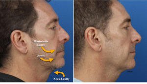 before and after photo of a man who underwent the gi jaw procedure in new york