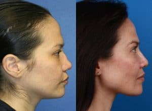 before and after of a owmna who received a mirco rhinoplasty in new york