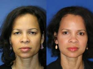 New York Blepharoplasty Eyelid Surgery Before After