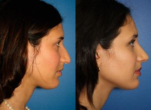 Ethnic Rhinoplasty procedure before and after in new york city
