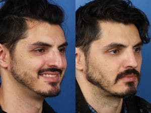 Man with a bump on his nose is seen in left picture, and has a smaller nose without a bump nose after rhinoplasty in the second picture.