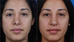 On the left, a woman is shown with an asymmetrical nose and nostrils. On the right, the same woman is shown after NatraNose with a more symmetrical nose