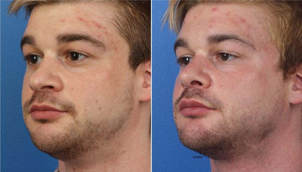 Buccal fat excision surgery before and after photo alongside other surgical procedures by Dr. Miller.
