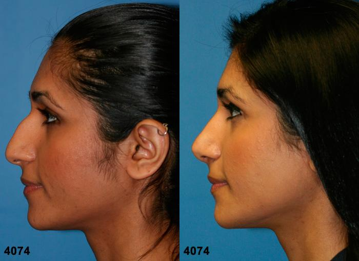 Before and after image of an ethnic rhinoplasty surgery performed by NYC's Dr. Miller