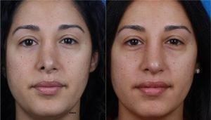 Before after results of rhinoplasty in new york