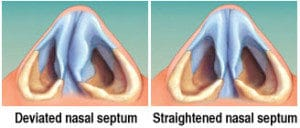 Septoplasty Diagram in New York