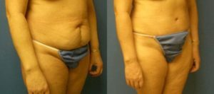 before and after image of a tummy tuck and mommy makeover procedure performed at our plastic surgery clinic in New York City.