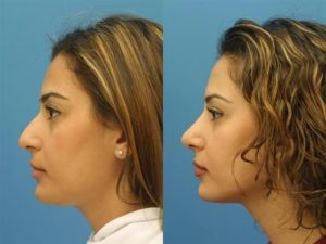 New York Wide Rhinoplasty Surgery Results