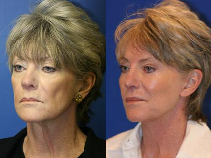 Neck lift before after results in new york