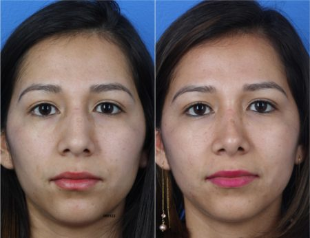 Rhinoplasty to Improve Nasal Bridge and Tip by Dr. Miller