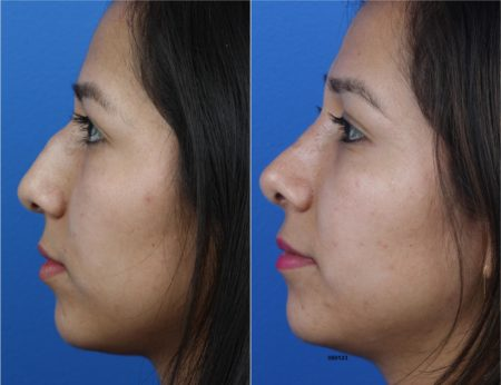 Rhinoplasty to Remove Hump on Nasal Bridge by Dr. Miller