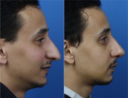 Rhinoplasty to Straighten Nasal Bridge and Improve Nose Size by Dr. Miller