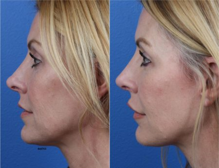 Rhinoplasty using NatraNose Technique by Dr. Miller