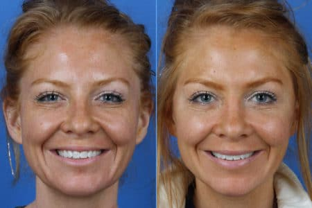 Micro Lift to Reduce Sagging Skin and Restore Youthful Appearance by Dr. Miller