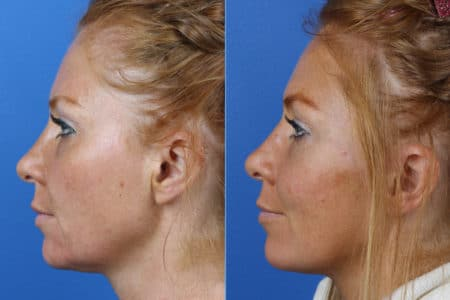 Micro Lift to Address Skin Sagging and Aging Symptoms by Dr. Miller
