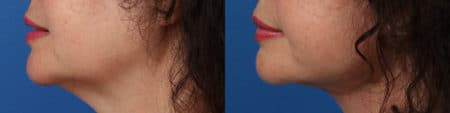 Facelift and Neck Lift to Address Sagging Skin and Jowl Formation by Dr. Miller