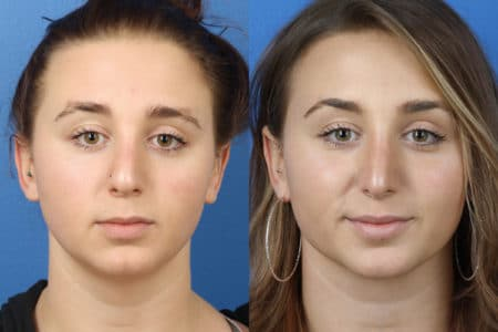 Rhinoplasty to Improve Nose Shape by Dr. Miller