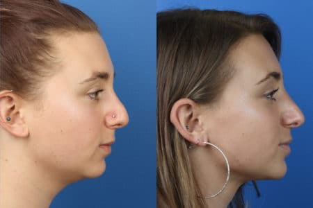 Rhinoplasty to Enhance Nasal Bridge and Tip by Dr. Miller