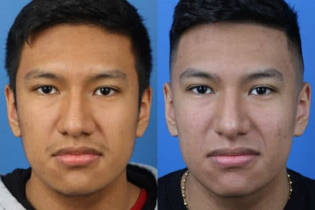 Rhinoplasty to Straighten Nose by Dr. Miller