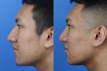 Rhinoplasty to Correct Nasal Bridge by Dr. Miller