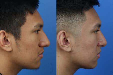Rhinoplasty to Correct Nasal Bridge by Dr. Miller