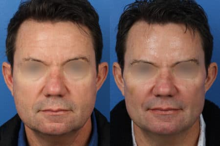 Brow Lift to Correct Forehead Drooping by Dr. Miller