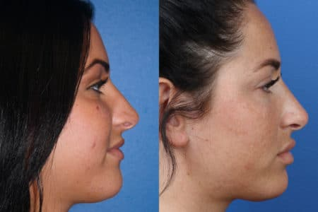 Rhinoplasty to Improve Nose Shape and Facial Profile by Dr. Miller