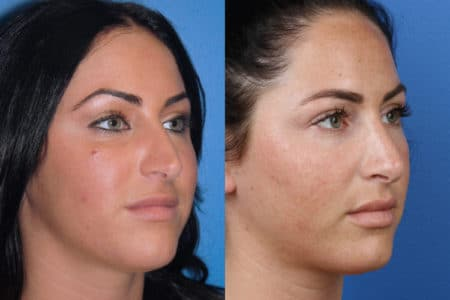 Rhinoplasty to Improve Nasal Bridge and Refine Tip by Dr. Miller
