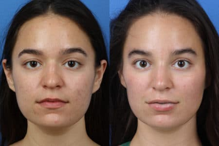 Rhinoplasty to Improve Nose Shape and Size by Dr. Miller